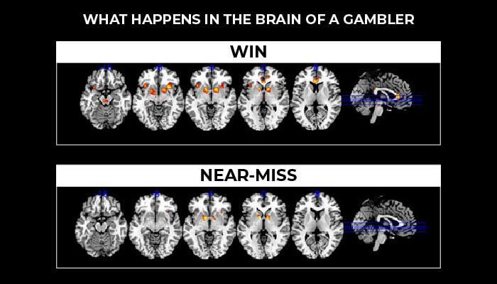What happens in the brain of a gambler